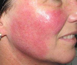 rosacea behandelingen