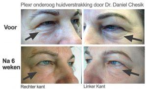 voor en na foto's plexr wallen huidverstrakking