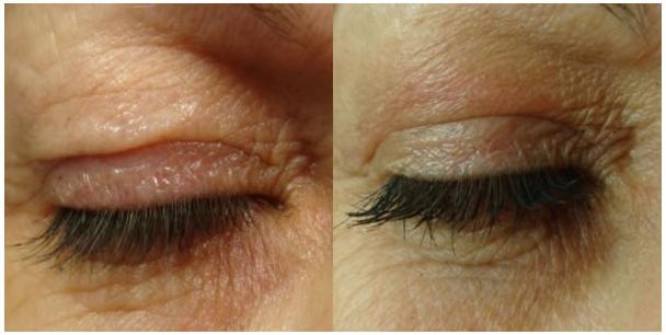 ooglid behandeling
