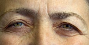 veroudering oogleden